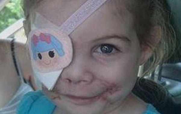 Victoria Wilcher. La niña de tres años fue atacada por tres perros pitbull. Y ahora la discriminaron en un local KFC.