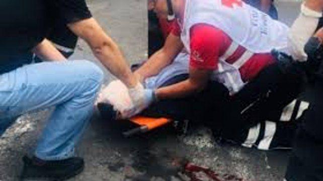 El periodista Freddy Paredes del canal de televisión Teleamazonas recibió un piedrazo en la cabeza.