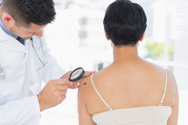 La importancia de la detección temprana del melanoma cutáneo
