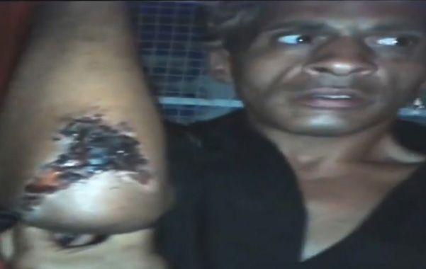 La víctima muestra la herida que recibió en un brazo.
