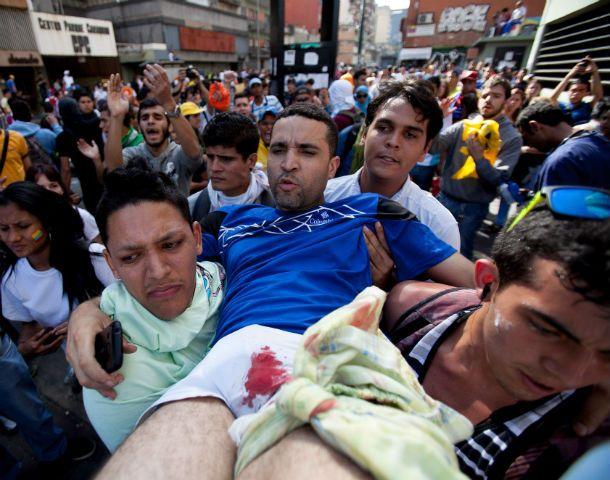 Miércoles negro. Un herido de bala en las protestas del pasado miércoles 12