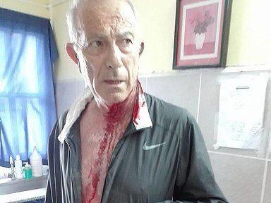 Agredieron a golpes y le provocaron heridas cortantes al presidente comunal de Andino