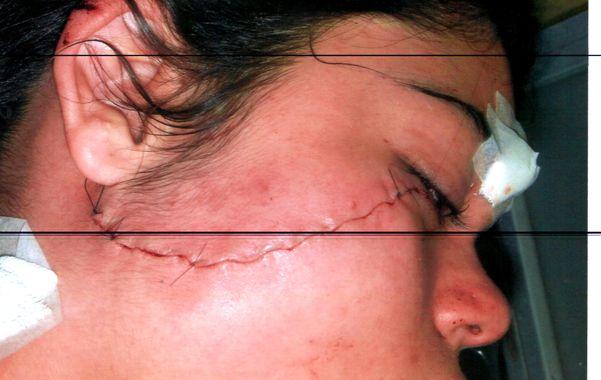 Más que un susto. Pilar se recupera de la agresión. Le suturaron la herida por dentro en el Hospital Español.