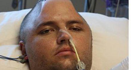 Salvan a un joven tras extraerle el cráneo, congelarlo y reimplantarlo