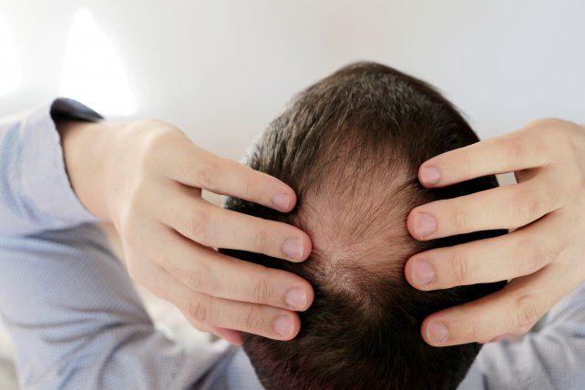 Qué tratamientos elegir para evitar llegar a la calvicie