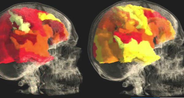 ¿Qué sucede en el cerebro de las mujeres durante y después de un orgasmo?