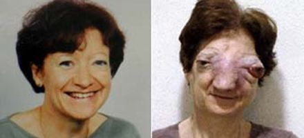 Confirman que la francesa a la que le negaron la eutanasia se suicidó
