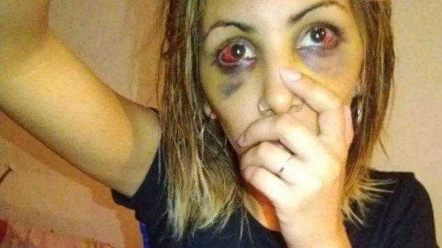 Pese a la perimetral, vio a su ex con un amigo y la atacó salvajemente