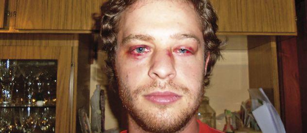 Mala noche. Juan Pablo se recupera de las heridas que le produjo la fuerte golpiza. Lo curó su hermana médica.