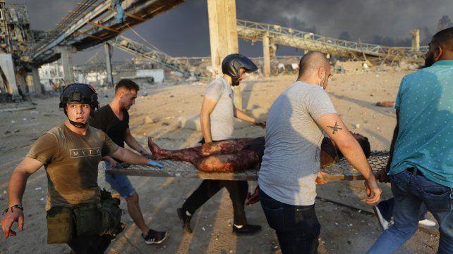 La tremenda explosión en la zona portuaria de Beirut dejó a más de cuatro mil heridos.
