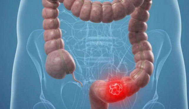 Detectan altísima tasa de cáncer de colon por falta de un control temprano