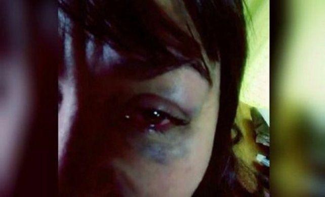 La foto que la víctima publicó en las redes sociales.