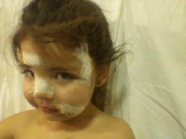 Lesiones. Victoria recibió suturas en el cuero cabelludo