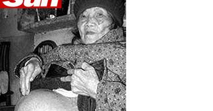 Una mujer china de 92 años lleva un feto en su vientre desde hace 60 años