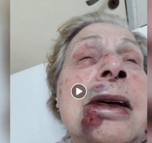 La mujer fue golpeada salvajemente para robarle la jubilación. (Foto: imagen de TV)