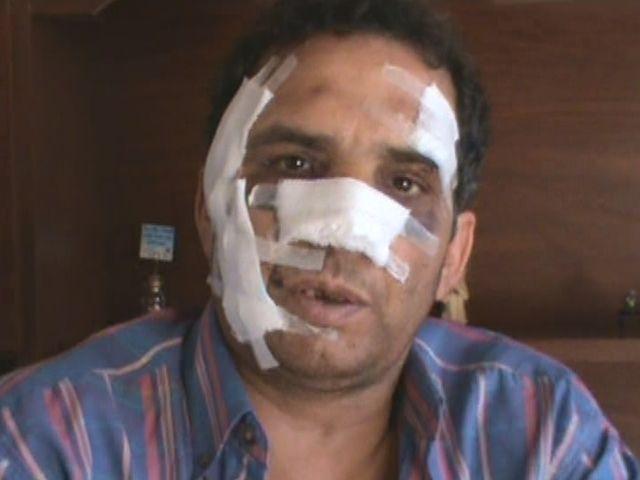 Un taxista fue desfigurado por ladrones que le pegaron en la cara con una botella de cerveza