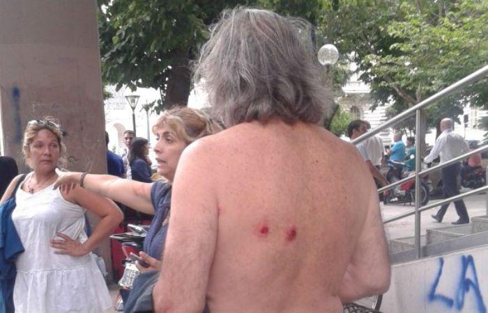 Un trabajador exhibe en su espalda los rastros dejados por las balas de goma. (Foto Twitter)