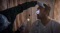 Hongo negro. Un nuevo caso de mucormicosis fue detectado en Formosa.