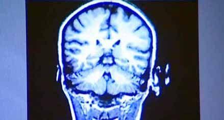 La pérdida de la capacidad cognitiva comienza a los 45 años