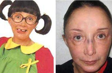 Fíjate, fíjate, fíjate: La Chilindrina sufrió un accidente doméstico