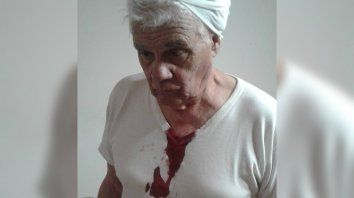 Un expresidente comunal santafesino fue golpeado por violar el aislamiento social