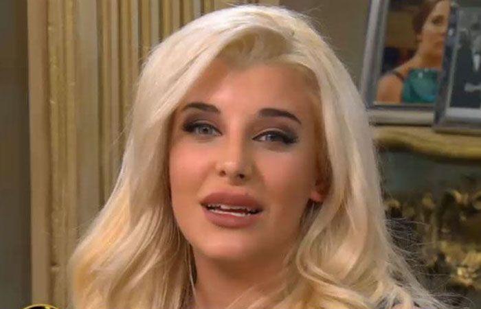 La joven con sólo 22 años denota a simple vista sus múltiples cirugías plásticas.