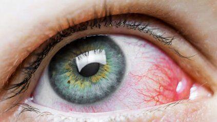 Varios ensayos determinaron que el coronavirus puede ser contraído a través del ojo.