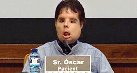 Dieron de alta al primer trasplantado total de cara del mundo
