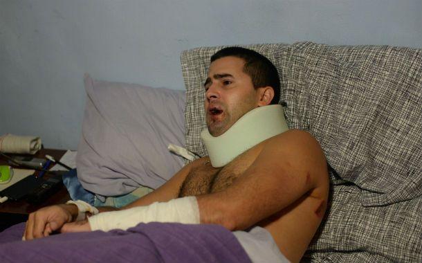 Marcelo se recuperaba ayer en su casa. Le pegaron en la boca