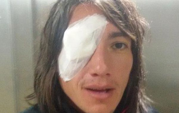 Secuela. Lugüercio y el parche en el ojo derecho. Se lastimó la córnea pero no le traería mayores problemas.