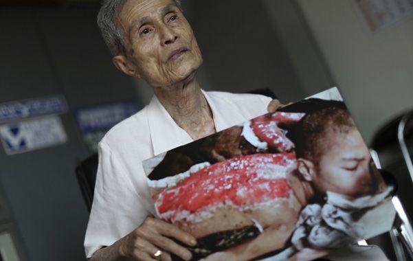 Testigo. El sobreviviente Sumiteru Taniguchi tiene 86 años. Su foto de 1945 se convirtió en un ícono de Nagasaki.