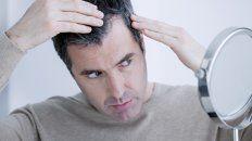 10 pasos de hair recovery para solucionar la perdida de pelo