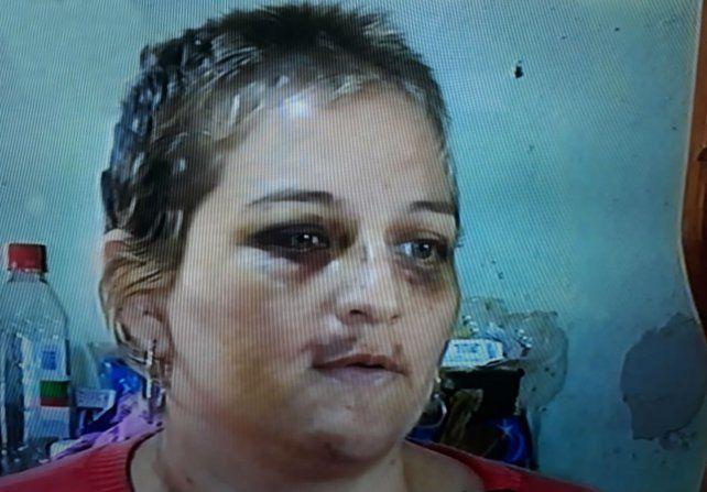 A Betiana no solo le pegaron sino que además le cortaron el pelo y le sacaron fotos y la filmaron. (Foto: captura de TV)