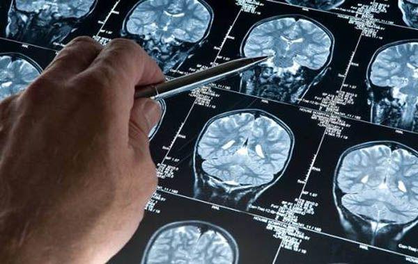 La investigación anuncia la posibilidad de desarrollar estrategias de tratamient en una etapa anterior a la enfermedad.