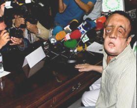 Paciente de trasplante de cara aparece en público y anima a donantes