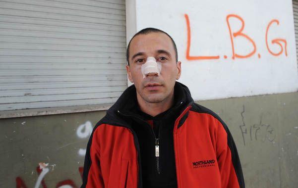 Denunciante. A Erico Neironi le rompieron el tabique nasal y le cortaron la cabeza en Rondeau y Matheu.