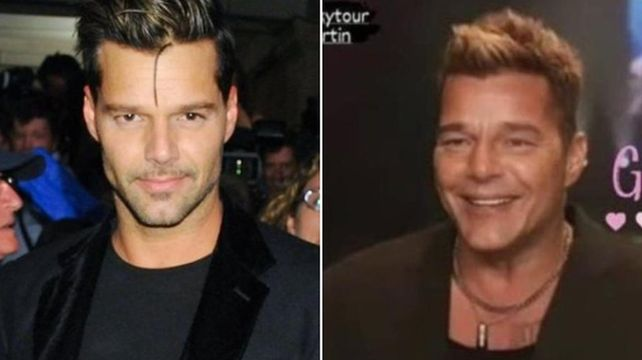 El antes y después de Ricky Martín