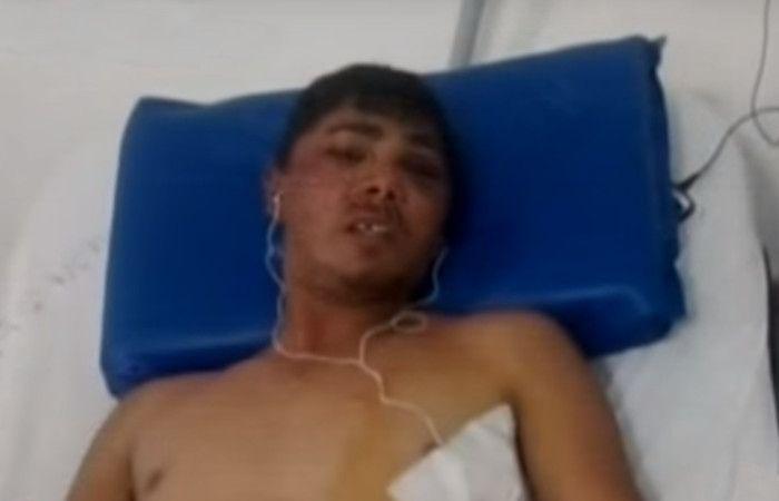 El hombre atacado tiene tres cortes en la cabeza