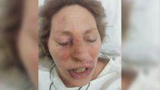 Llegó encapuchado durante la madrugada y atacó salvajemente a su pareja