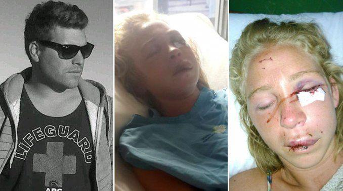Una joven denunció una brutal paliza de su ex: Me golpeó hasta dejarme inconsciente