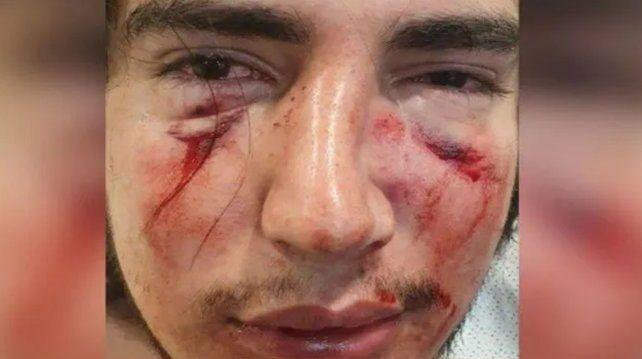 atacado-el-joven-sufrio-fractura-tabique-y-orbita-ocularjpg
