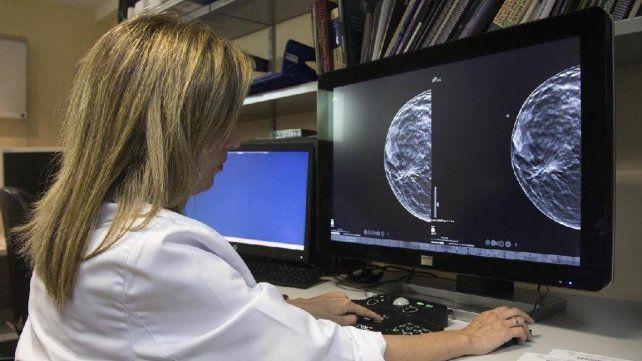 Campaña para hacerse mamografías gratis