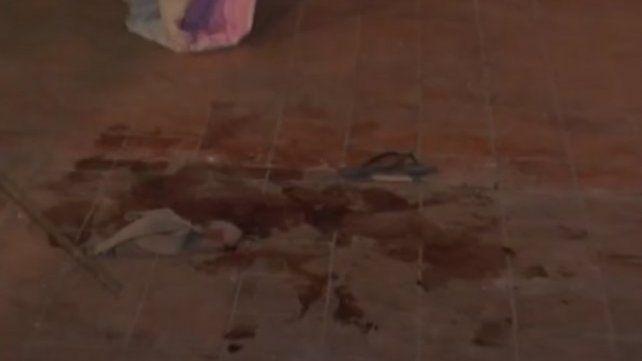Murió en el Heca un hombre que la semana pasada fue baleado por su hijastro