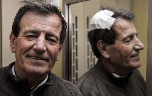Raúl Gámez terminó con una herida en la cabeza.