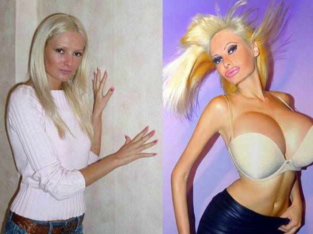 Victoria Wild antes y después.