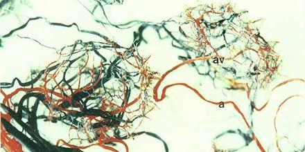 Una nueva tecnología permite conocer las arterias con sólo cinco latidos