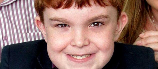 Ciaran Finn-Lynch nació con una malformación severa.