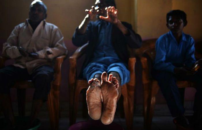 Secuelas. Pacientes de un albergue de la India pasan la tarde.
