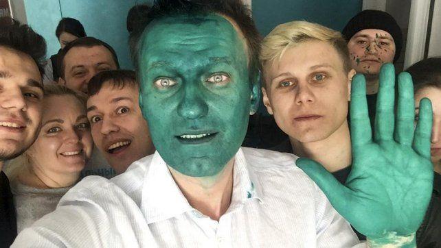 El líder opositor ruso desafía el poder del Kremlin con la cara pintada de verde