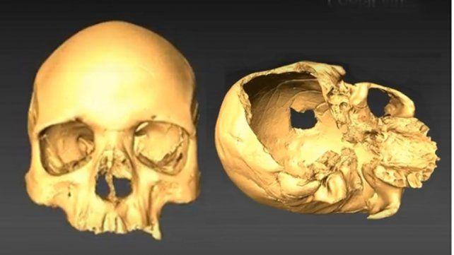 El haber podido identificar el punto de impacto en la fractura craneal permitió inferir que el hombre había sido asesinado con una azuela.